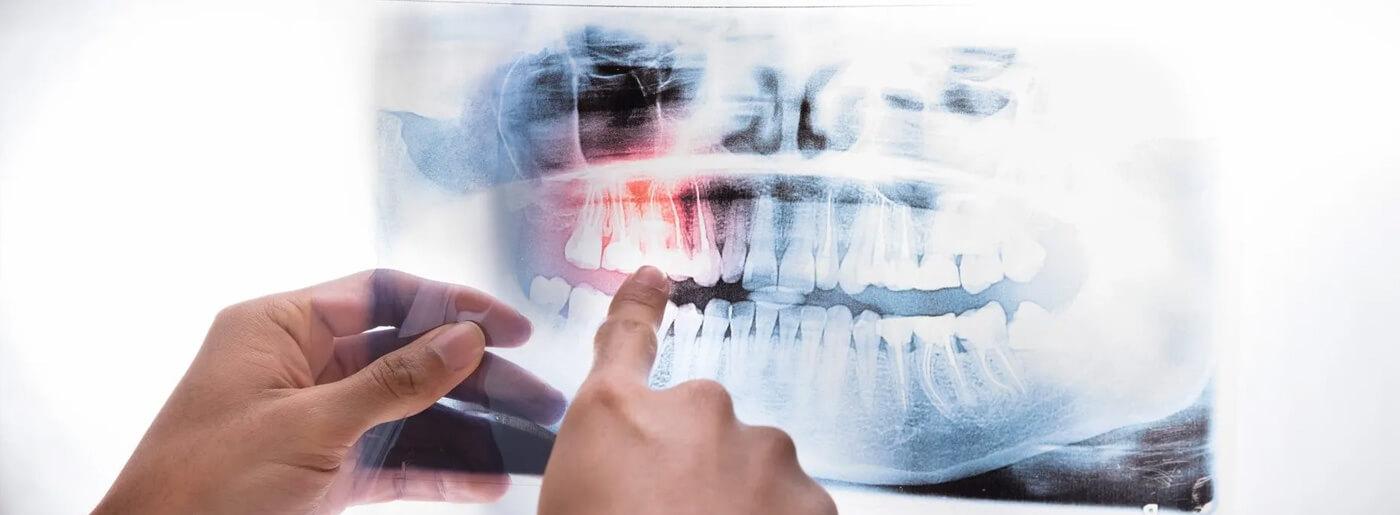 Ortopantomografia | Studio radiologico Zorini Tortona